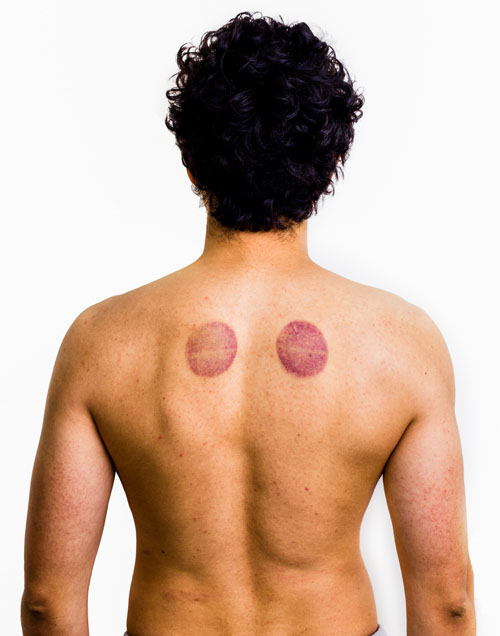 Myofascial Cupping | Refined Massage Therapy - St. Albert