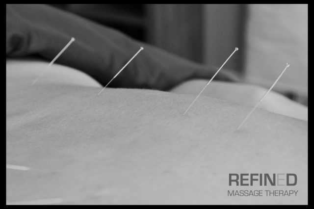 refined-massage-therapy-acupuncture-10